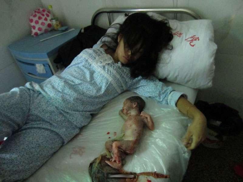 Zwangsabtreibungen und unfreiwillige Sterilisationen durch die UN verhindern!